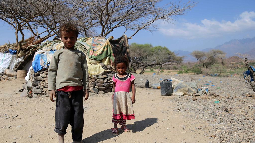 Perang Sebabkan 1,8 Juta Anak Yaman Kekurangan Gizi