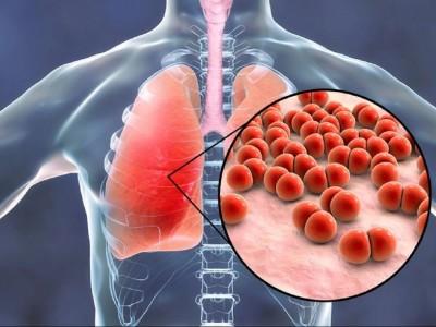 Tanggapan PBNU atas Merebaknya Virus Pneumonia Corona