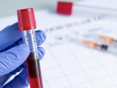 Satgas NU Ajak Penyintas Sumbang Plasma Sembuhkan Penderita Covid-19
